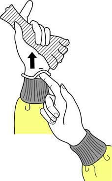 removing medical gloves